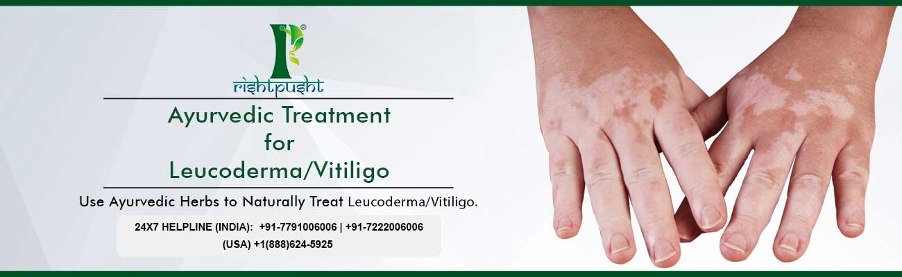 Ayurvedic Treatment Of Leucoderma Vitiligo Nd Care Nirogam Pvt Ltd