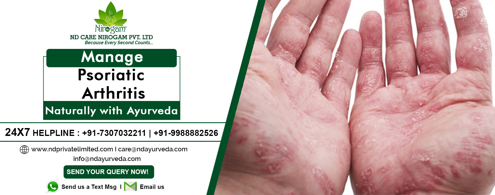 Ayurvedic psoriatic Treatment